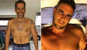 Evitar flacidez após cirurgia bariátrica: como famosos fizeram para não ter sobra de pele?